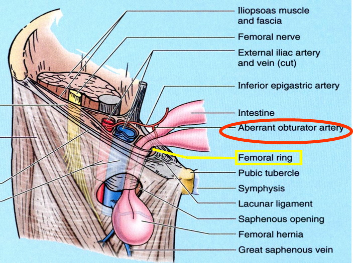 anatomy of inguinal and femoral hernias - inguinal and femoral hernia, Muscles